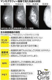 マンモグラフィーとエコー検査.jpg